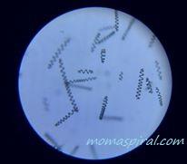 spirulina-pod-mikroskopem-moma (1)